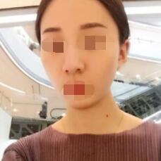 沈阳李铁男医生擅长项目