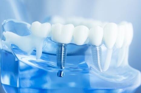 假牙VS种植牙,看看哪个更好