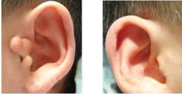 副耳切除术后的疤痕很鲜明吗