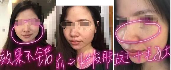 上海芙艾整形opt光子嫩肤治疗案例 花了11000元 看看怎么样