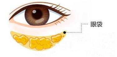 今日热搜:祛眼袋手术安全起见