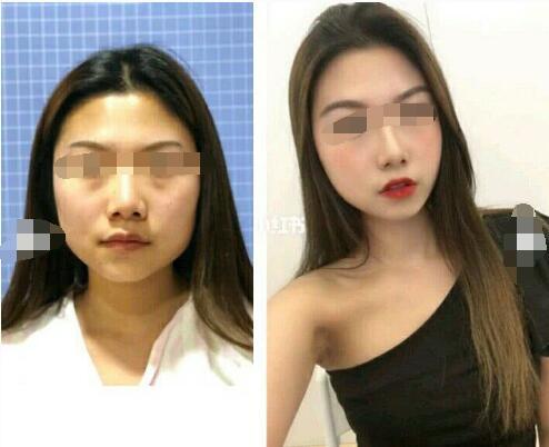 九月热搜:面部吸脂术后消肿时间离不开术后护理