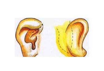 分享杯狀耳矯正常用的三種方法