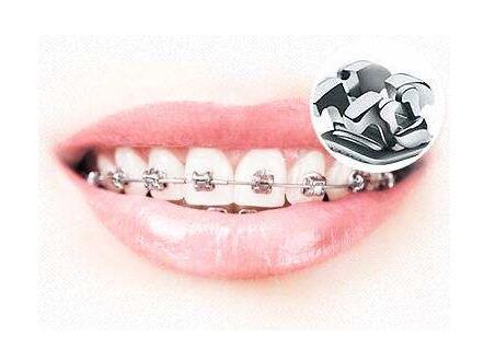 牙齿矫正需要的时间受这四方面的因素影响