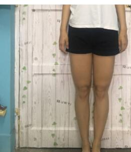 上海艺星医院做吸脂瘦大腿案例