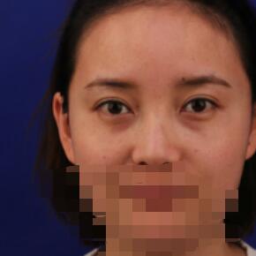 上海美莱医院做自体肋软骨隆鼻案例
