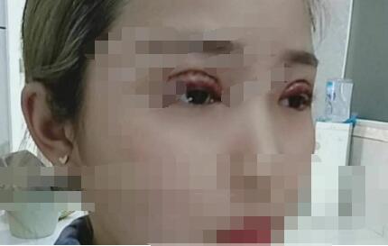 合肥壹加壹整形全切双眼皮案例