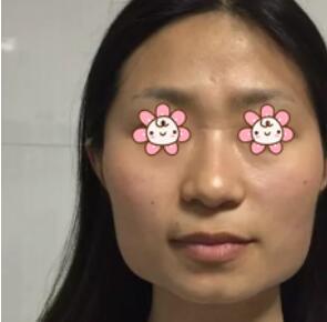 重庆美仑美奂医院做下颌角整形案例