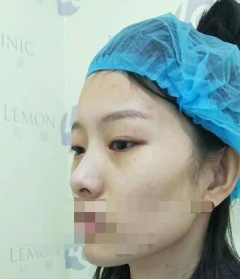 南京柠檬医院做隆鼻手术案例