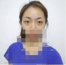北京协和医院整形赵茹医生双眼皮案例