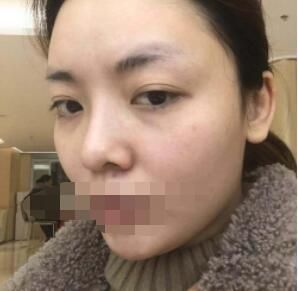 重庆华美医院分享颧骨整形案例 术后?#25215;?#24456;有立体感附加照片