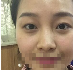 重庆军美医院分享双眼皮案例 术后眼神好美附加照片