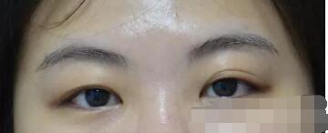 汕头伊丽莎白医院做眼部综合术案例 术后眼睛?#25191;?#21448;有神附加照片
