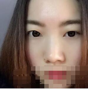 北京壹加壹医院分享全切双眼皮案例 术后眼睛很有神