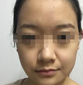 北京壹加壹医院做面部吸脂案例 脸型更加的有立体感 附加照片