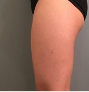 重庆万家燕医院分享大腿吸脂案例 术后细长小腿呈现 附加照片
