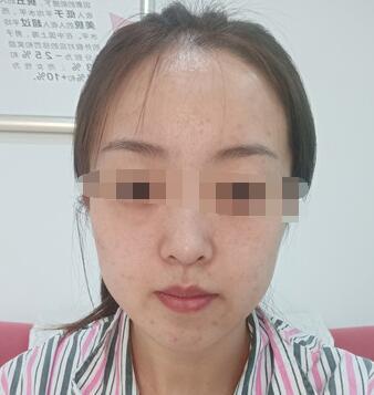 黑龙江瑞丽医院做自体脂肪全脸填充案例 杨永胜医生技术精湛风格