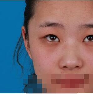 济南韩美医院做全切双眼皮案例 术后眼睛美美哒附加照片