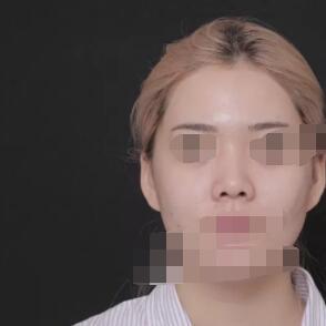 北京伊美尔整形自体肋软骨隆鼻案例 看看我花6.4万的变化