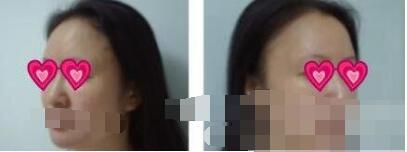 上海真爱医院做面部除皱案例 重拾自信?#19968;?#20102;青春 附加照片