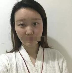南宁韩成医院做隆鼻案例 刘彬医生技术口碑好