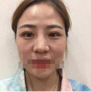 广州华美医院做隆鼻+面部填充案例 李文峰医生技术精湛风格自然