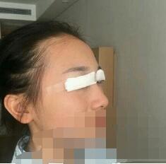 北京伊美尔整形秦宏伟双眼皮案例 一起看看术后半个月变化的我