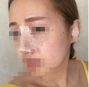 南京艺星整形硅胶隆鼻案例 分享我术后的真实变化 花了8200元