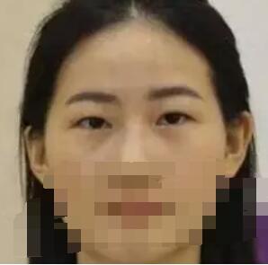 南宁亚韩整形全切双眼皮案例 大家看看我花6700元做的改变下