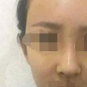 四川华人医联医院做硅胶隆鼻案例 高亮医生技术口碑好