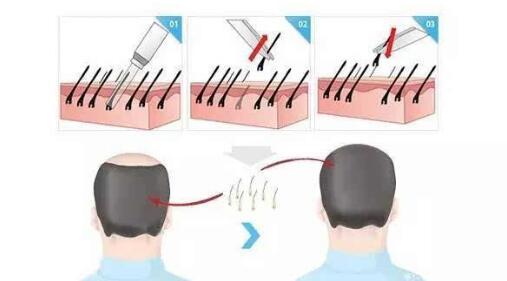 选择头发种植医院要注意的这三点