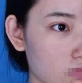 青岛王博士医院做鼻部综合术案例 术后鼻子很有立体附加照片