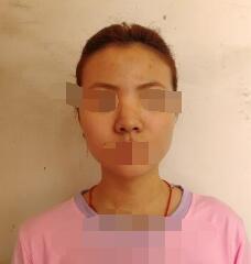 北京马勇光假体隆鼻案例 医生真的很专业