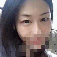 北京吕晓杰双眼皮案例 上传术后变化图和分享心得了