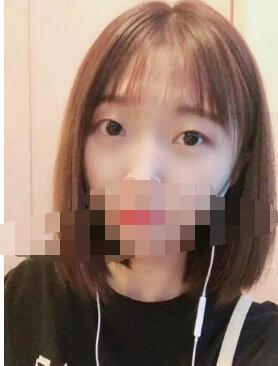 北京西美整形吕薇双眼皮案例 术后眼睛真的特美哦 快来看看