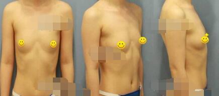 合肥艺星整形自体脂肪隆胸案例 今天跟大家分享我的心得