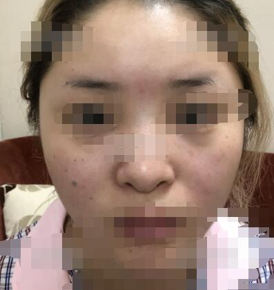 上海伯思立整形自体软骨延长鼻小柱案例 附心得分享+变化图