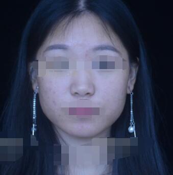 北京壹加壹整形注射肉毒素注射案例 分享我近期的变化了