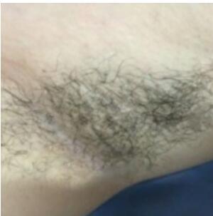 上海愉悦美联臣医院做分享激光脱腋毛案例 术后肌肤很光滑附加图