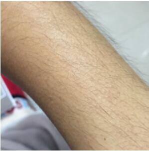 珠海爱思特医院做冰点脱毛案例 术后肌肤很光滑很实惠附加有图