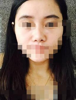 广州自体脂肪隆鼻案例 术后变化了不少