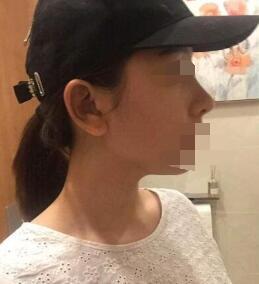 广州自体软骨隆鼻案例