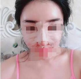 广州假体隆鼻案例 看看我术后这几个月的蜕变了