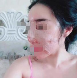 广州假体隆鼻案例