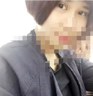 广州埋线双眼皮案例