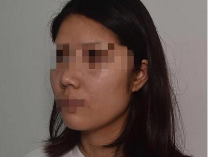 徐州华美整形面部吸脂案例 术后的脸型很精致