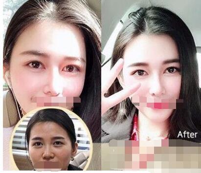 广州韩后医院做双眼皮口碑技术介绍