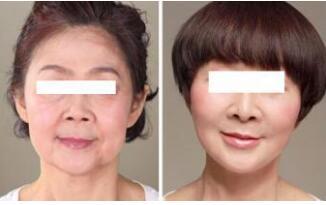 十月关注:面部除皱几大分类