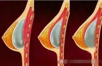 十月爆料:假體隆胸術后如何讓胸部變軟