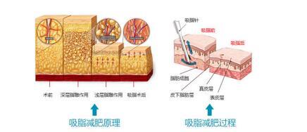 水動力吸脂恢復期間分析
